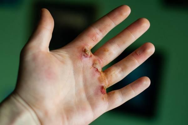 Les mains déchirées sont-elles toujours cool en CrossFit?  - Fitness, crossfit, jeux de crossfit, craie, crossfit ouvert, craie liquide, callosités, mains déchirées, molette d'haltères, sangles de gymnastique